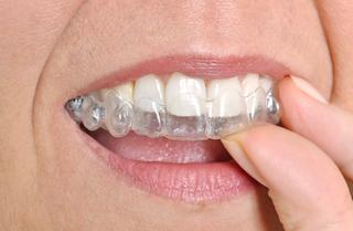 Invisalign | Sinick Family Dental
