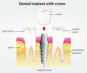 Dental implants with a crown | Sinick Family Dental | Medina, OH