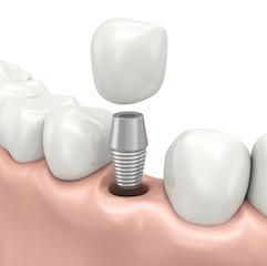 A diagram of a dental implant | Dental implants in medina oh