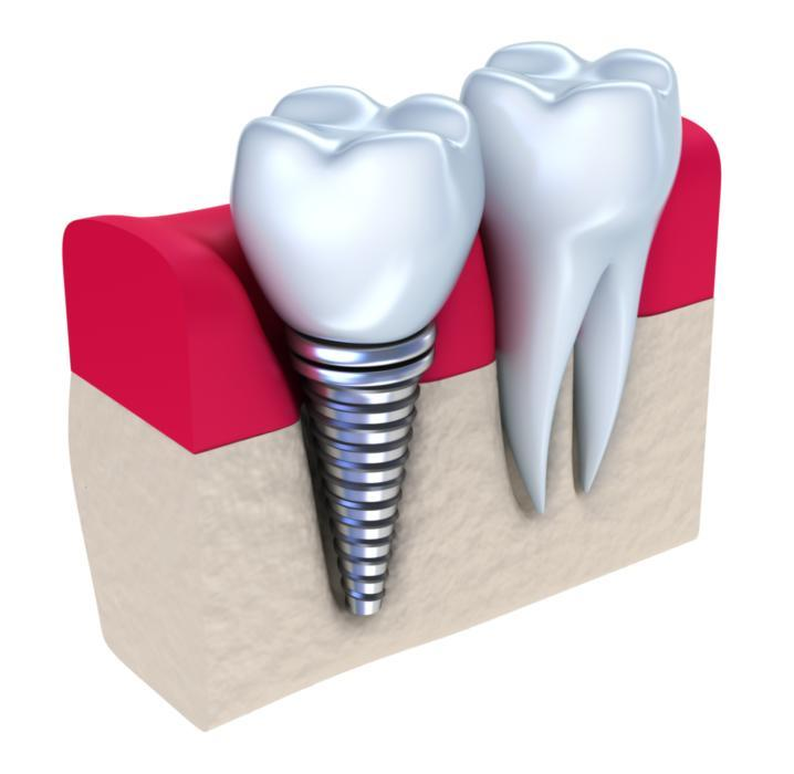 A diagram of a dental implant next to a natural tooth | Dental Implants Medina, OH