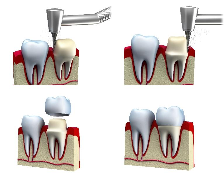 a diagram of a dental crown | medina oh dental crowns