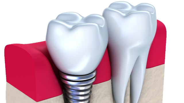 a diagram of a dental implant | dental implants medina oh